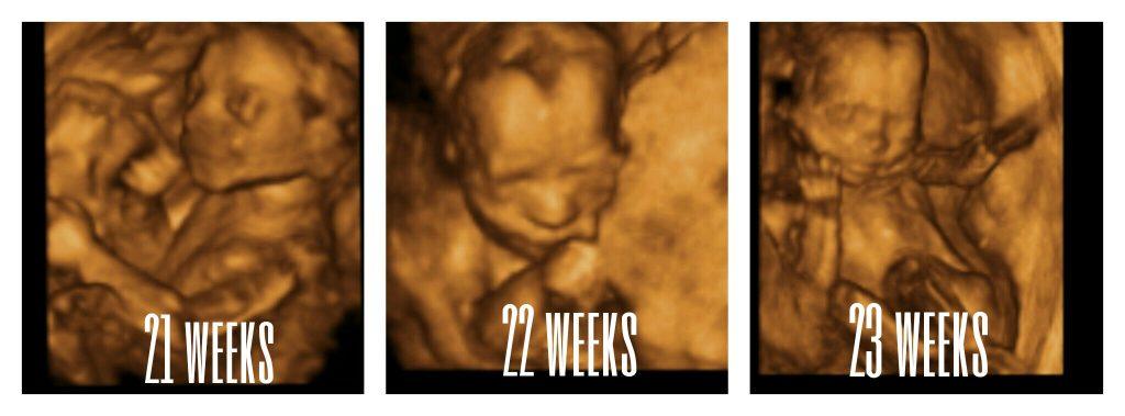 21weeks-23weeks images