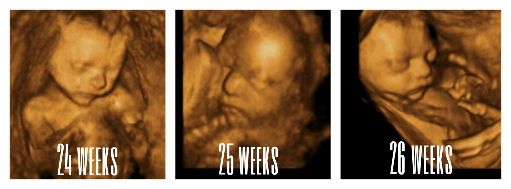 24-26 weeks images
