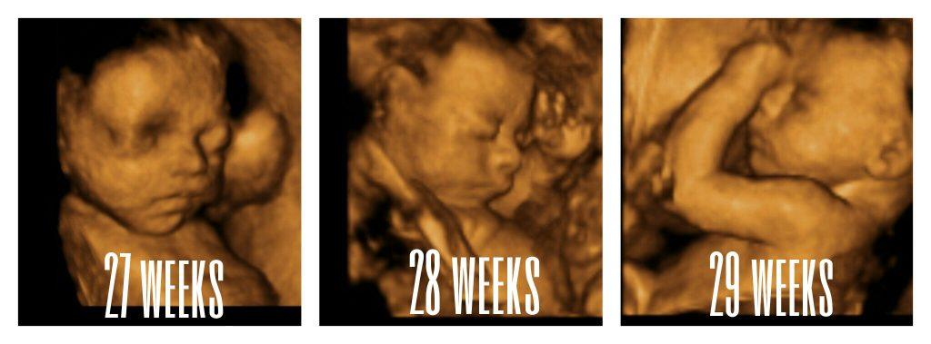27-29 weeks images