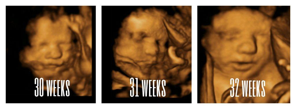 30-32 weeks images