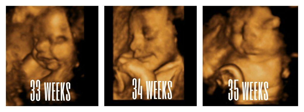 33-35 weeks images
