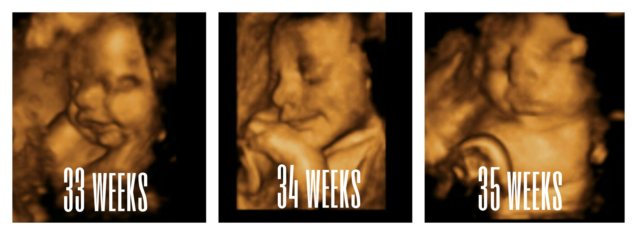 Dating ultrasound at 35 weeks